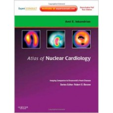 ATLAS OF NUCLEAR CARDIOLOGY: IMAGING COMPANION TO BRAUNWALD'S HEART DISEASE: EXPERT CONSULT-ONLINE AND PRINT