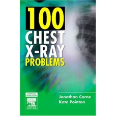 100 CHEST X-RAY PROBLEMS, 1ED