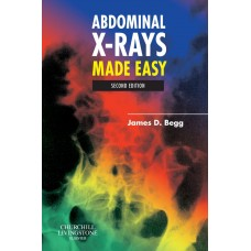 ABDOMINAL X-RAYS MADE EASY, 2ED